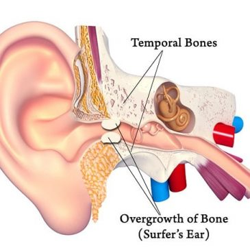 Just been to the doctors as had an ear and throat infection thing for about a week now, they couldn't see my ear drum because of my surfers ear #surfersear